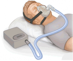 Illustration of sleeping man with anti snoring device